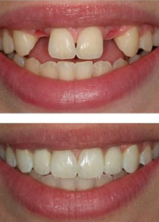 dental_implant_photo1