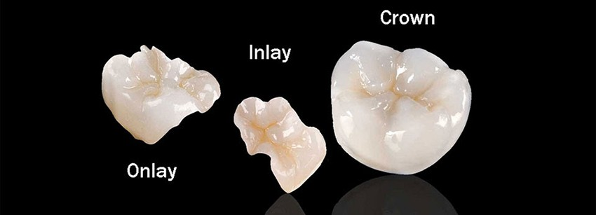 Teeth-Inlays-Onlays-Dentist-Boca-Raton-Florida