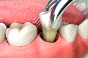 dentalextraction3